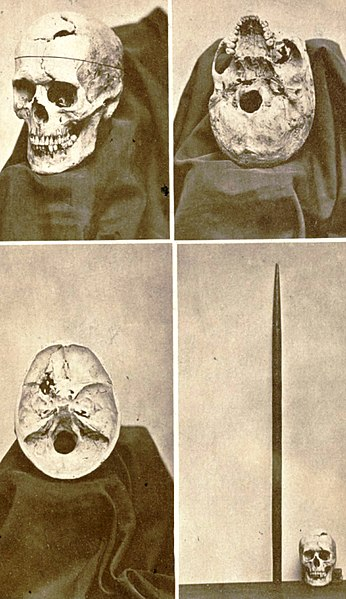 Frontispiece, showing multiple views of the exhumed skull, and tamping iron, of brain injury survivor Phineas Gage