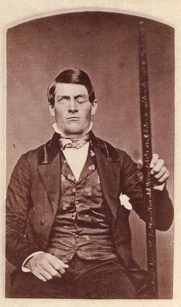 Phineas Gage (1823–1860)