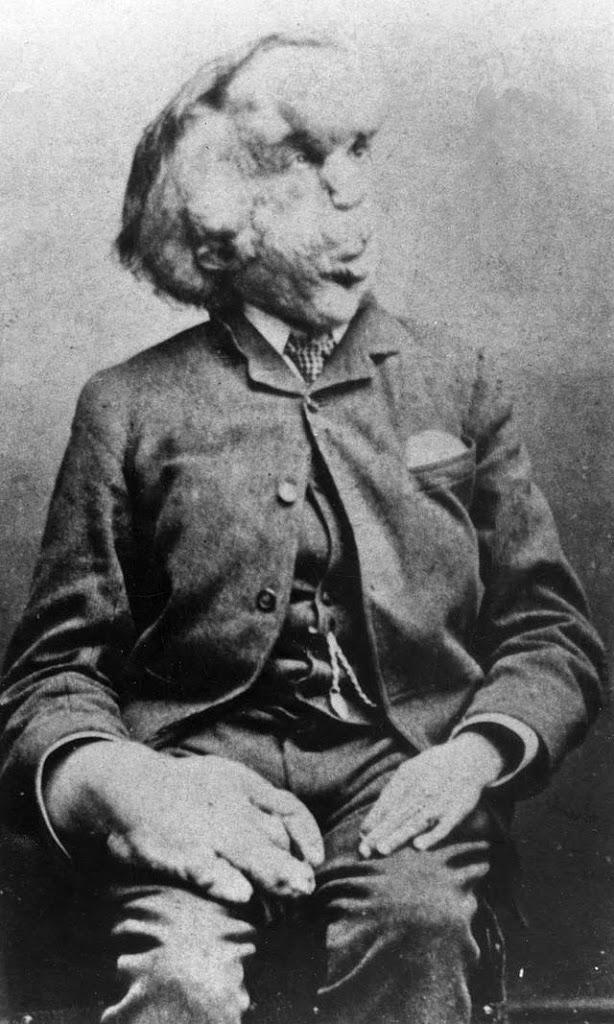 Joseph Merrick (1862-1890)
