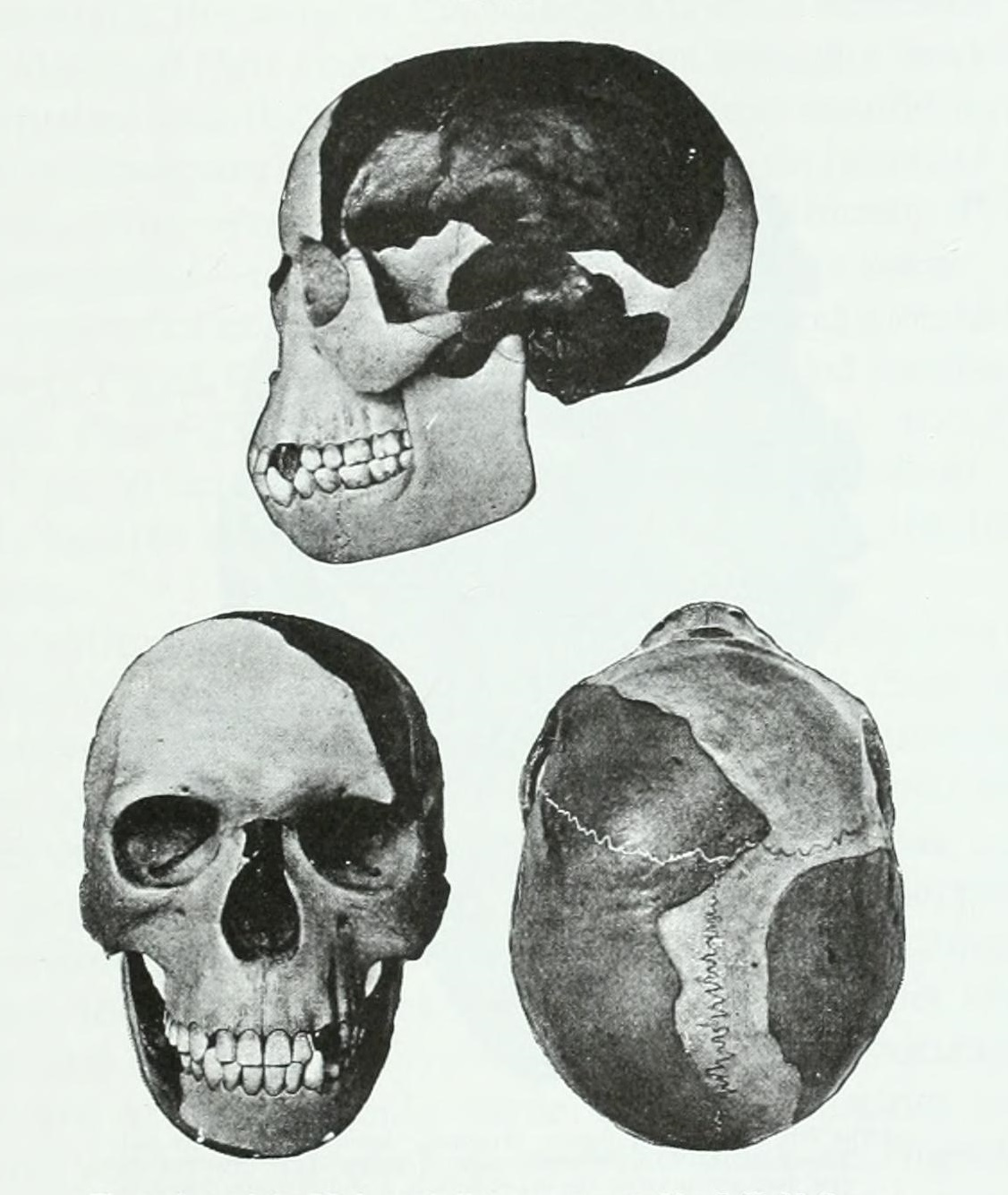Three Views of the Piltdown Skull: 1915 Reconstruction by James Howard McGregor