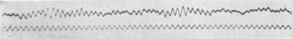 An early EEG recording by Hans Berger