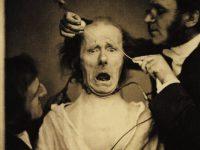 Duchenne de Boulogne's Research in Neurology