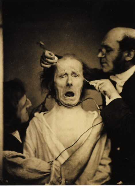 """Demonstration of the mechanics of facial expression. Duchenne and an assistant faradize the mimetic muscles of """"The Old Man."""""""