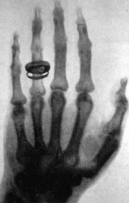 X-ray image: Albert von Koellikers hand, taken by Conrad Röntgen on 23 January 1896